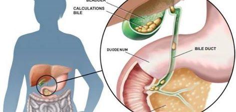ألم  حصوة المرارة هل يمكن علاجه بالاطعمة والاعشاب ؟