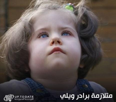 متلازمة برادر ويلي (Prader-Willi syndrome)