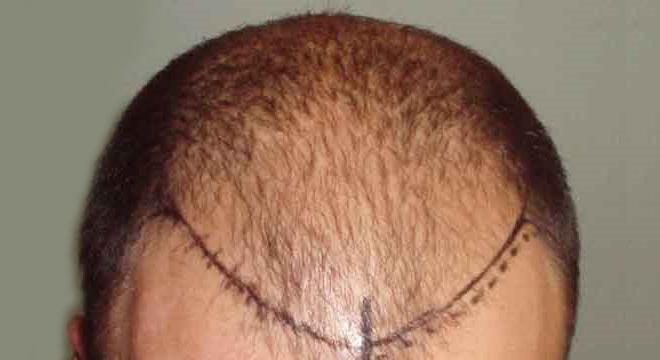 تعرف على كيفية عملية زراعة الشعر الطبيعي بالصور